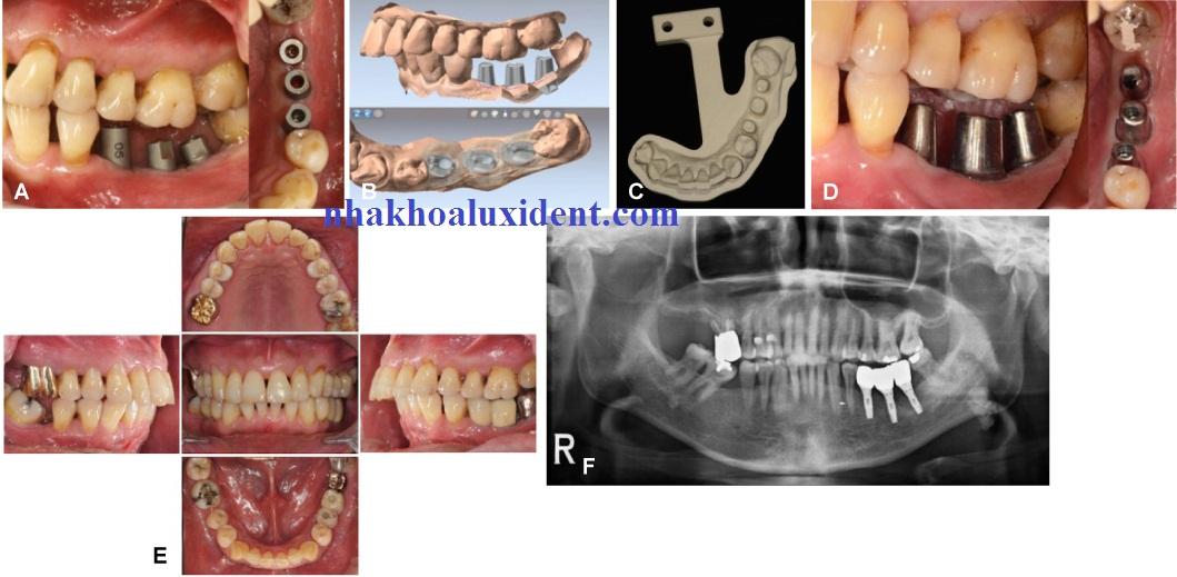 Thời gian làm răng implant là bao lâu?