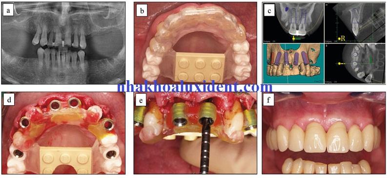 quy trình trồng răng implant.