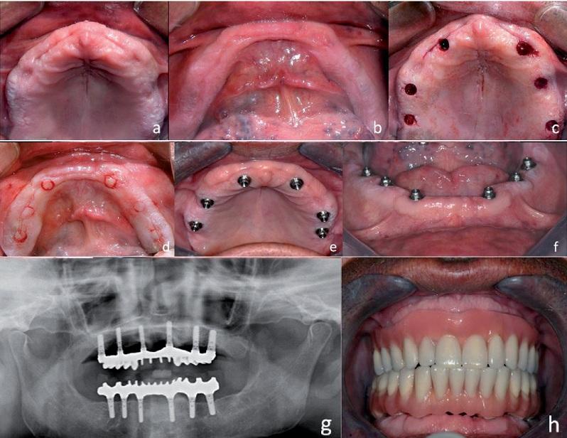 thời gian làm răng implant mất bao lâu