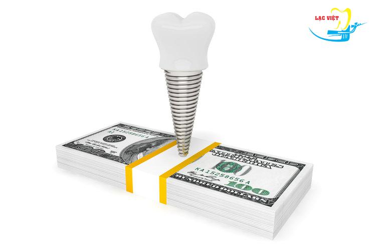 Giá làm răng sứ implant ở đâu tốt nhất Hà Nội?