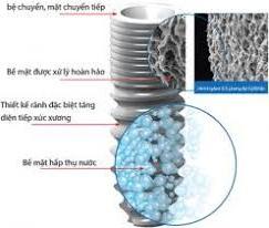 nên lựa chọn loại implant nào?