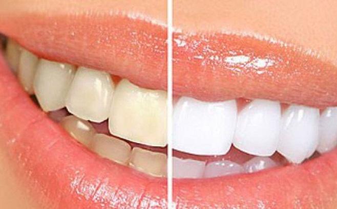 tẩy trắng răng khi cho con bú