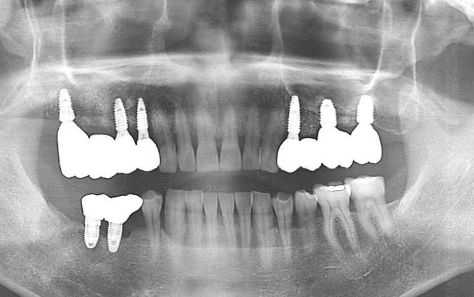 kỹ thuật trồng răng implant.