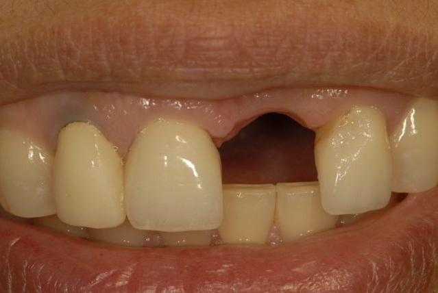 Trồng implant răng cửa