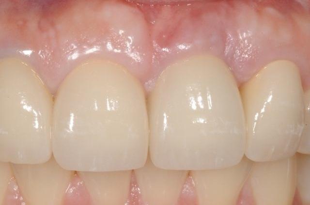 cấy ghép implant răng cửa.