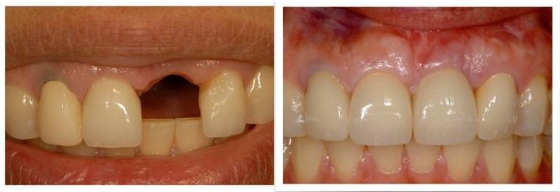 Trồng implant răng cửa 21 bị mất răng do tai nạn.