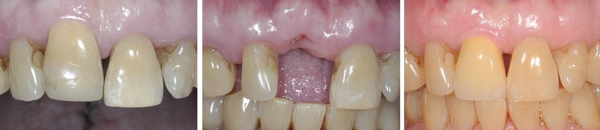cấy ghép implant răng cửa