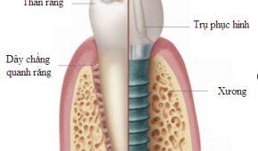 Trồng răng implant giá bao nhiêu?