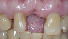 Cấy ghép implant răng cửa 11 bị gãy do tai nạn – Một trường hợp khó.