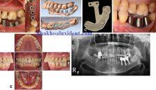 Quy trình trồng răng implant USI – quy trình trồng răng implant tiên tiến nhất.