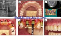 Chia sẻ kinh nghiệm làm răng giả có thể bạn chưa biết.