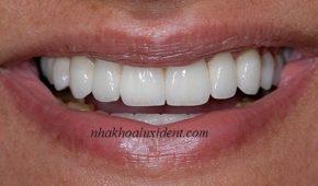 Cấy ghép implant cho trường hợp mất hết răng: kỹ thuật all – on – 6