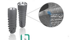 Phân tích giá làm răng sứ implant hiện nay.
