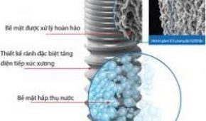 Trồng răng implant: nên lựa chọn loại implant nào?
