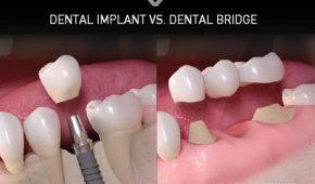Phương pháp trồng răng giả cố định nào tốt nhất hiện nay?