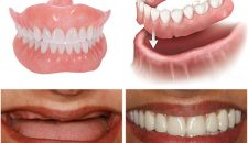 Trồng răng giả tháo lắp có thể sử dụng được trong bao lâu
