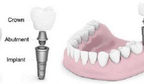 Răng implant bị lung lay: Nguyên nhân và cách khắc phục.