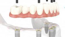 Khuyến mại trồng răng implant.