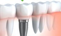 Cấy ghép implant là gì?