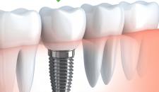 Địa chỉ trồng răng implant giá rẻ nhất tại Hà Nội