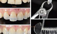 Khi làm răng cửa cần phải cẩn trọng với những vấn đề này
