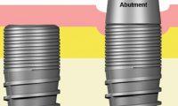 Các loại trụ implant khác nhau như thế nào?