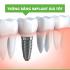 Địa chỉ trồng răng implant giá rẻ nhất tại Hà nội.